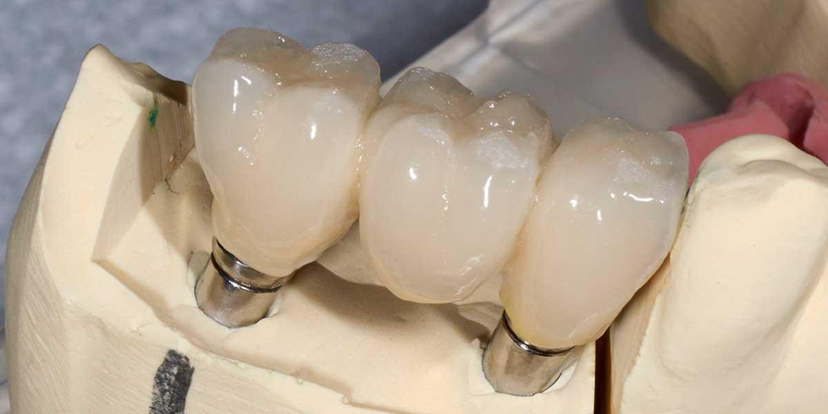 Aurora Dental Implant Supported Bridges