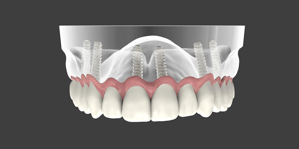 Aurora Dental Implant Supported Dentures