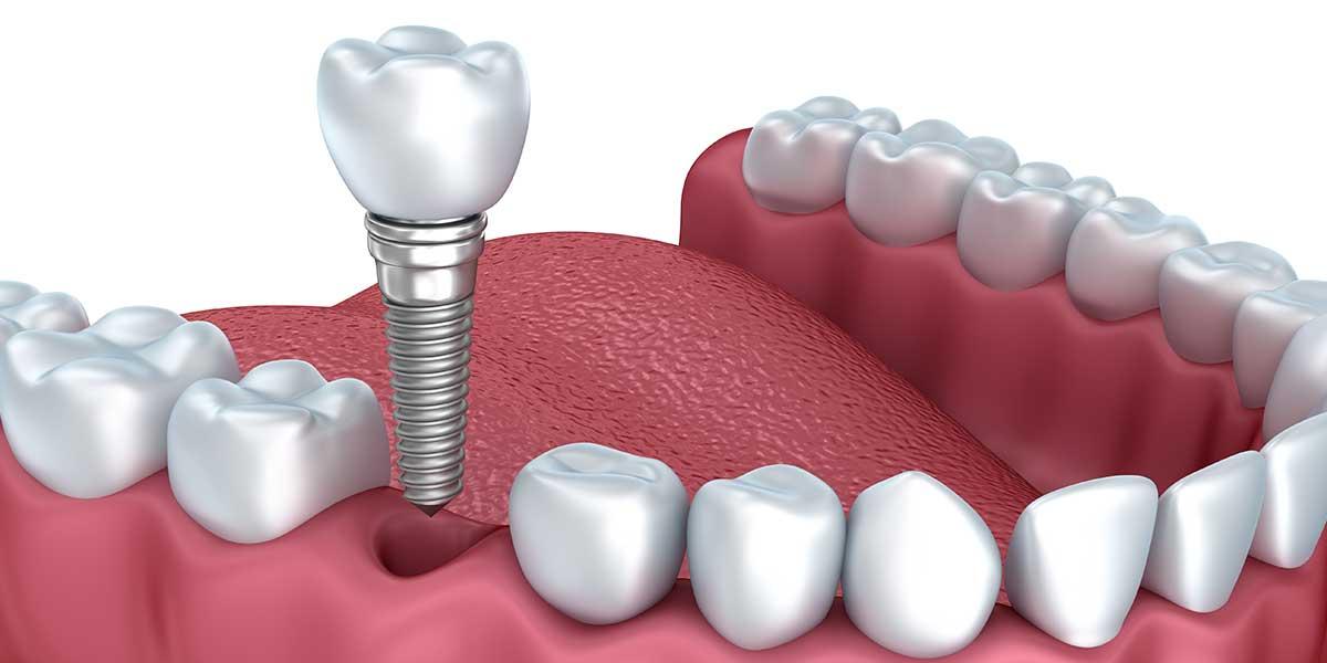 Single Dental Implants in Aurora, OH