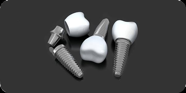 Dental Implants in Aurora, OH